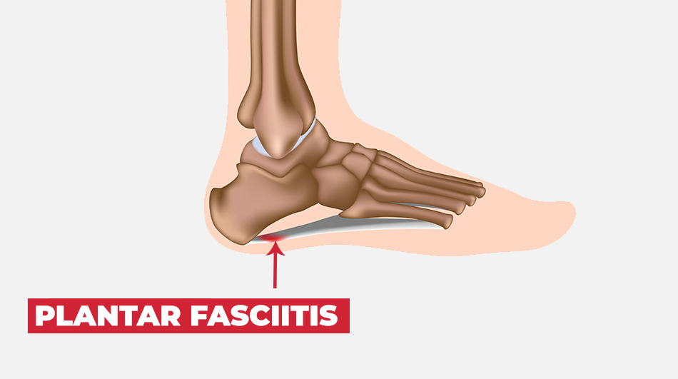 29 Quick Solutions That Every Runner With Foot Pain Need To Know